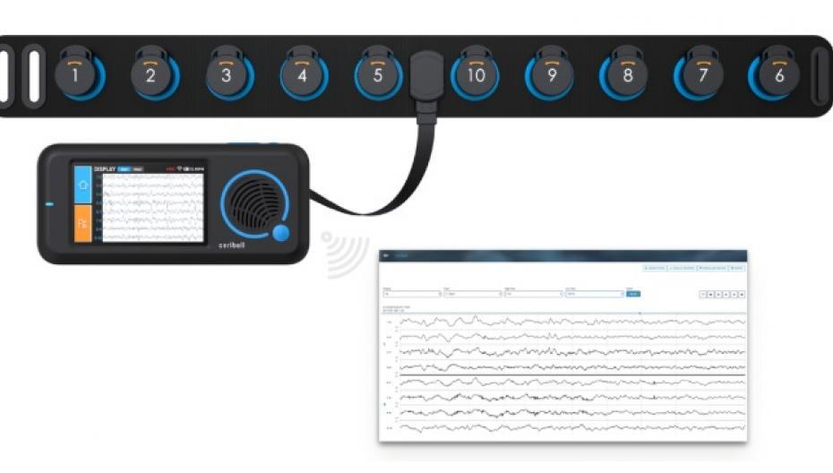 Портативная ЭЭГ-система для диагностики пациентов, страдающих от конвульсий