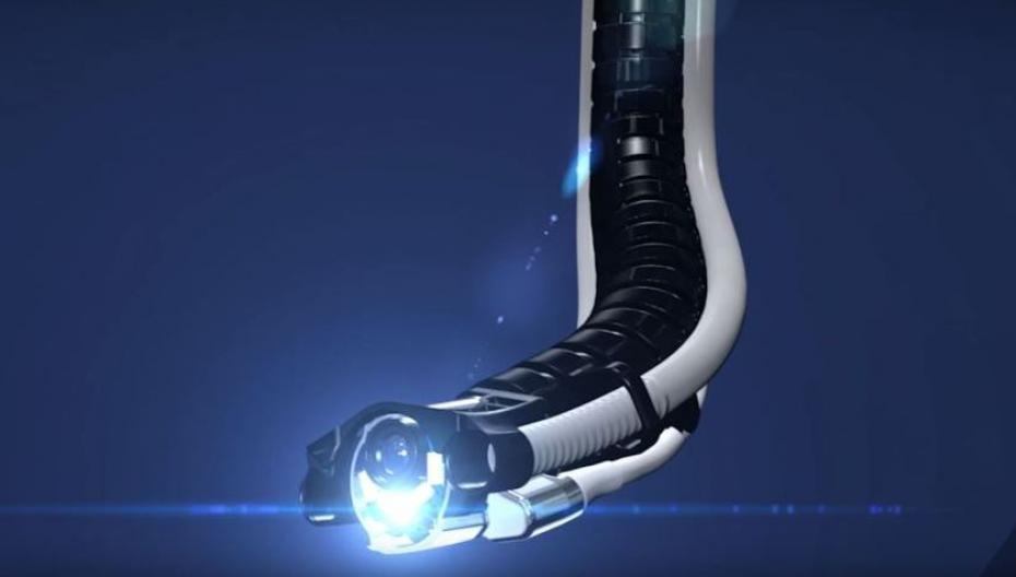 """Роботизированная """"змея"""", облегчающая проведение колоректальной эндоскопии"""