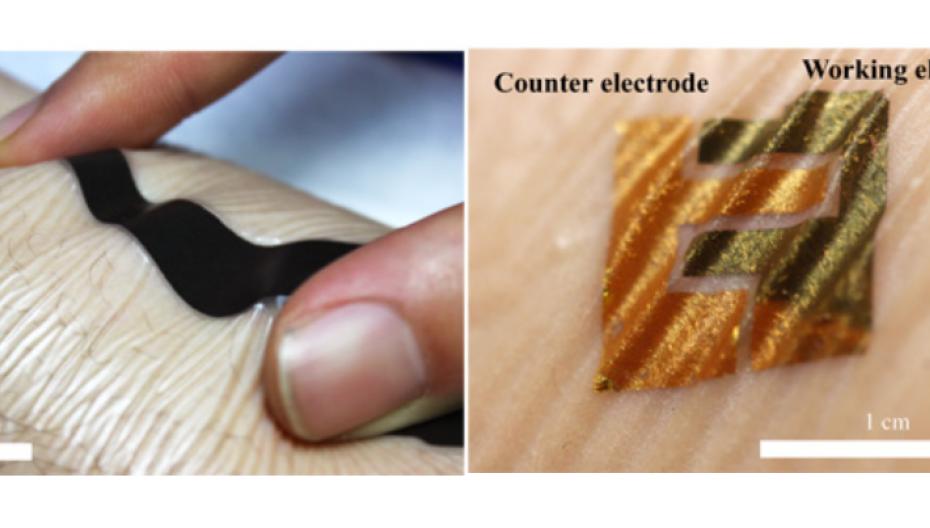 Биосенсор на коже для контроля уровня сахара