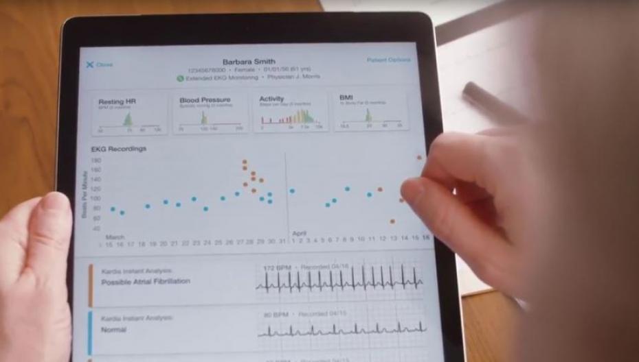 Приложение AliveCor, помогающее предотвратить инсульт