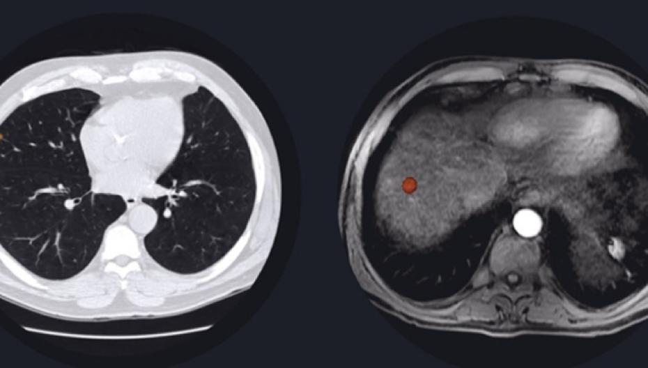 Искусственный интеллект для диагностики заболеваний печени и легких