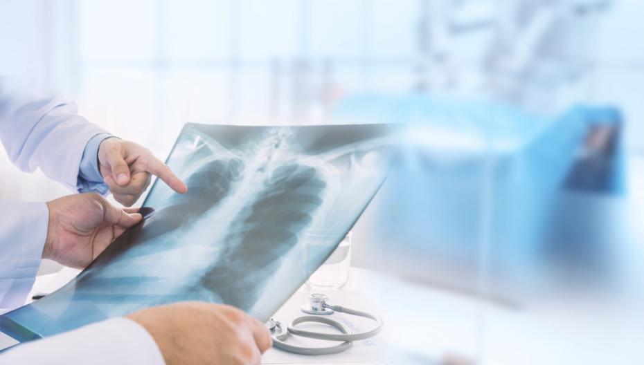 Zebra Medical вводит в эксплуатацию систему обнаружения пневмоторакса
