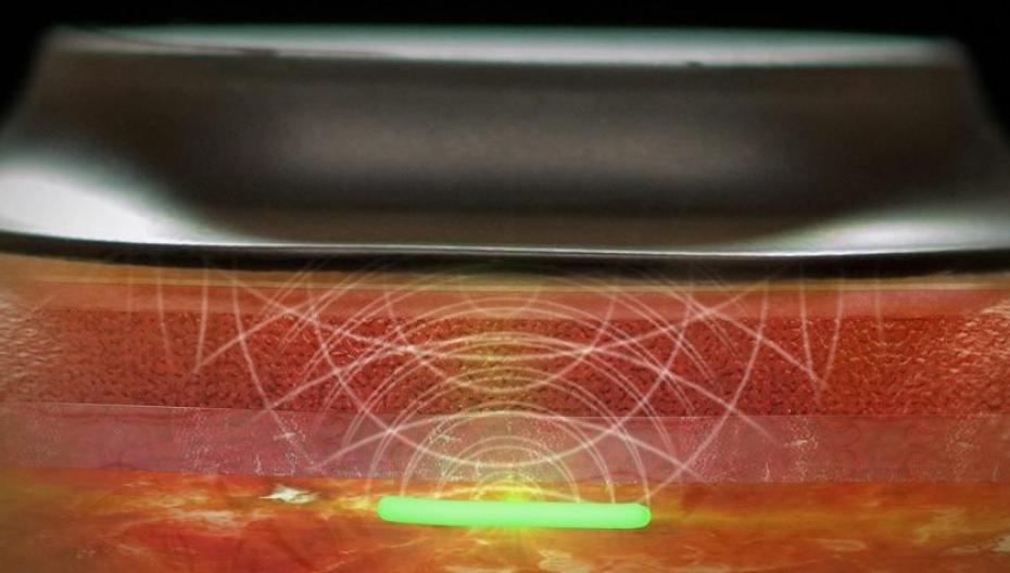 Profusa начинает разработку нового миниатюрного монитора кислорода в тканях
