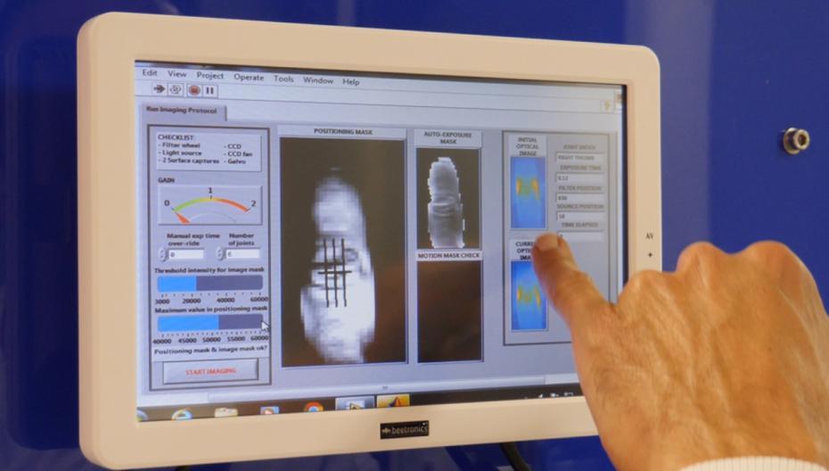 Диагностика ревматоидного артрита с помощью инфракрасного света