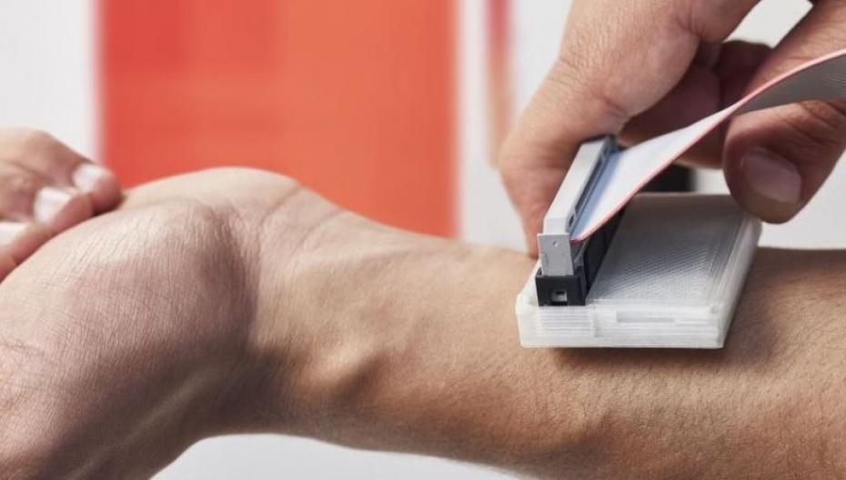 Недорогое устройство для диагностики рака кожи