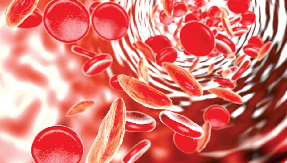 Микрофлюидный сенсор для мониторинга серповидноклеточной анемии