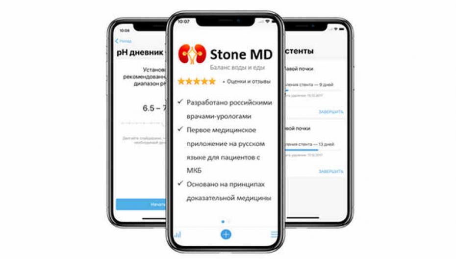 Современная профилактика мочекаменной болезни в вашем телефоне