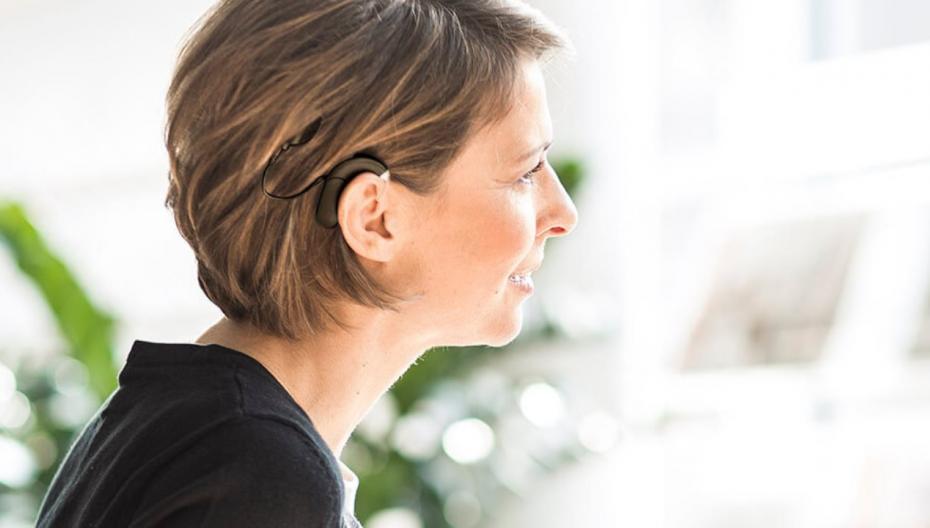 Первые кохлеарные имплантаты для людей с односторонней глухотой и асимметричной потерей слуха