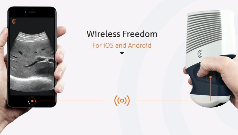 Беспроводной УЗИ для вашего смартфона