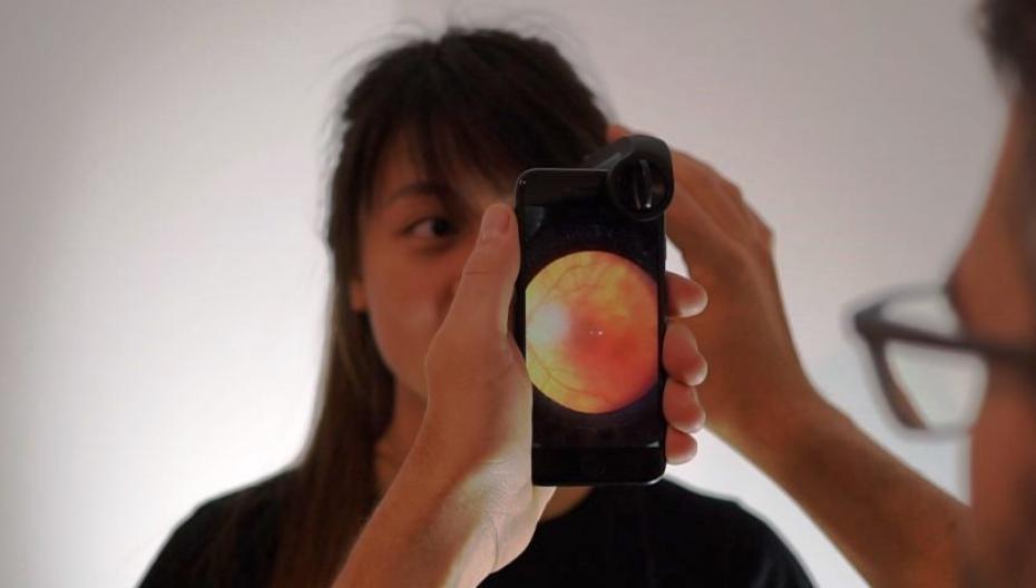 Офтальмоскоп на базе iPhone