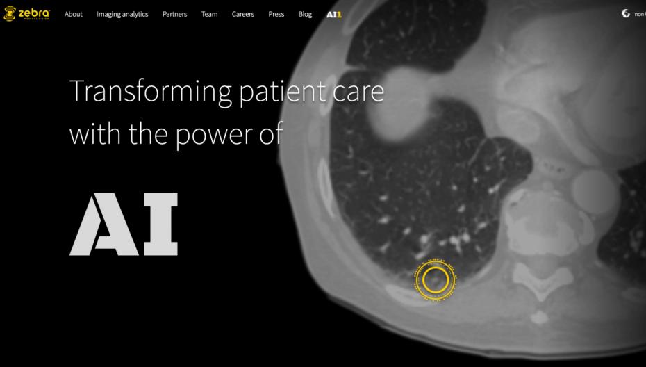 Система чтения медицинских сканов Zebra Medical начала внедряться в больницах Израиля
