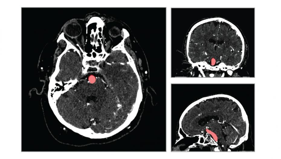 AI-система, помогающая обнаружить аневризму мозга