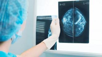 Радиолог, использующий AI-систему, идентифицирует рак груди с 90%-точностью