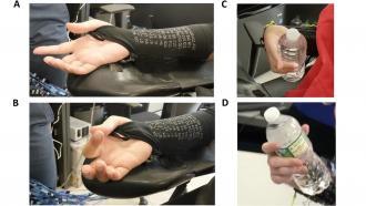 Нейростимуляция помогает полностью парализованным людям захватывать и поднимать объекты