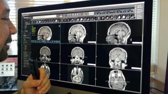 AI способен обнаружить деменцию за 6 лет до постановки диагноза