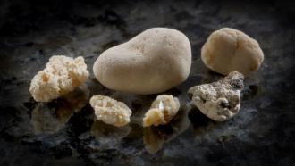 Новая система для быстрого анализа мочевых камней
