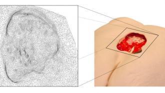 Смартфон как инструмент для измерения глубины раны