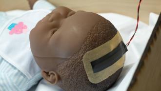 Неинвазивные датчики внутричерепного давления для наблюдения за младенцами