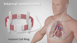 Сердечный насос с беспроводным питанием