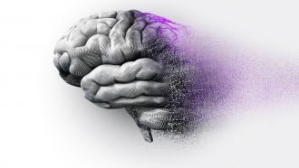 AI предсказывает болезнь Альцгеймера за шесть лет до постановки диагноза