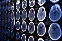 SPIE Medical Imaging 2021 - Международная конференция по новейшим технологиям медицинской визуализации и обработки изображений
