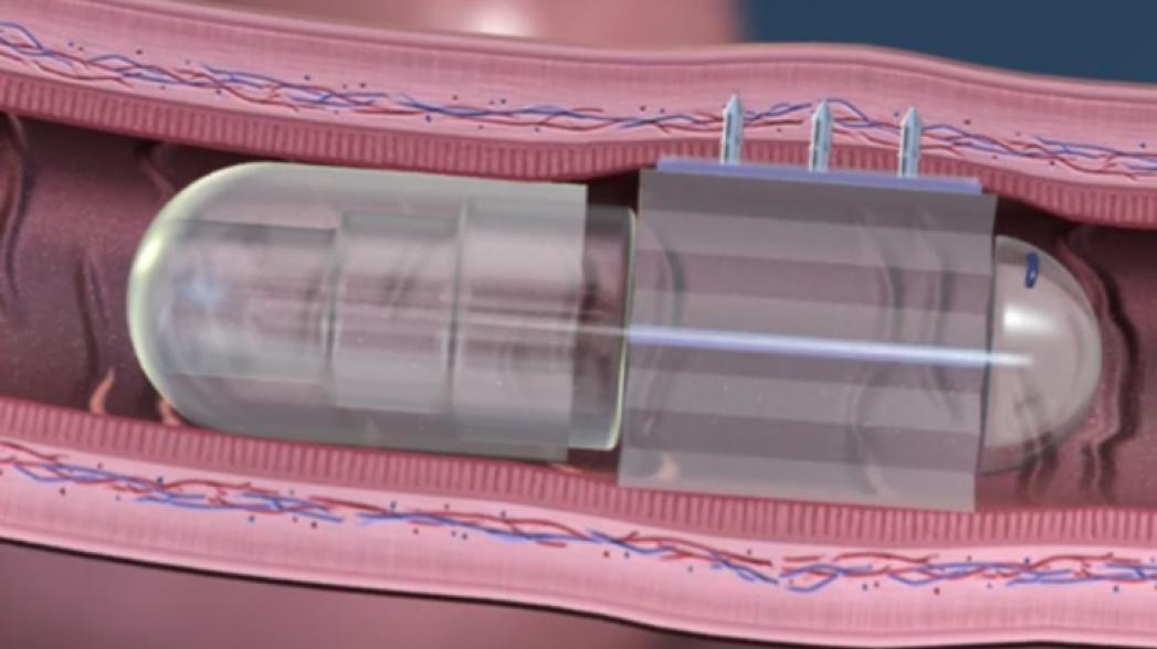 Роботизированная пилюля для точной доставки лекарств