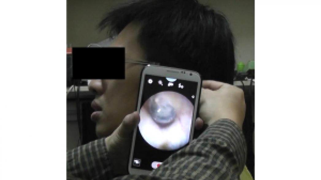 Эндоскоп как приложение к смартфону