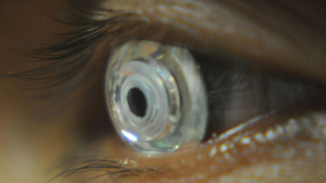 Умные контактные линзы от Samsung