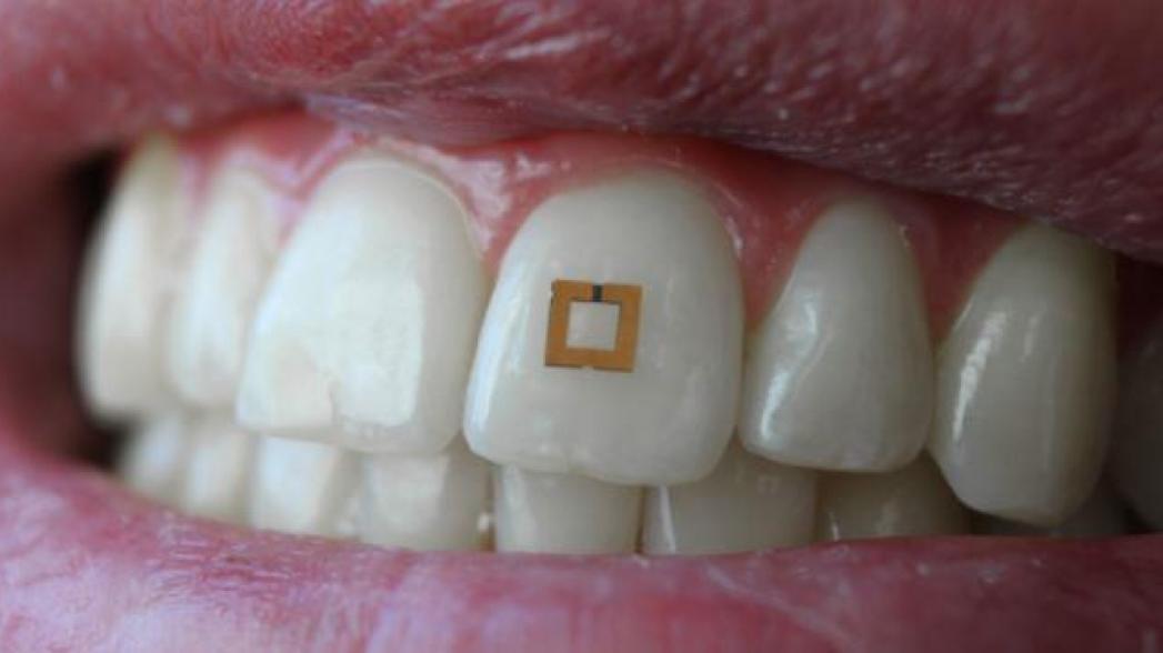 Сенсор в зубе контролирует вашу еду