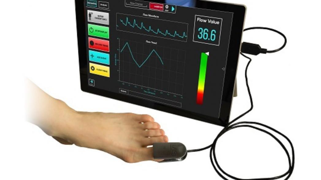 FlowMet-R: неинвазивный прибор для мониторинга кровотока