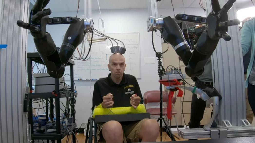 Человек впервые смог управлять двумя роботизированными протезами рук с помощью мыслей