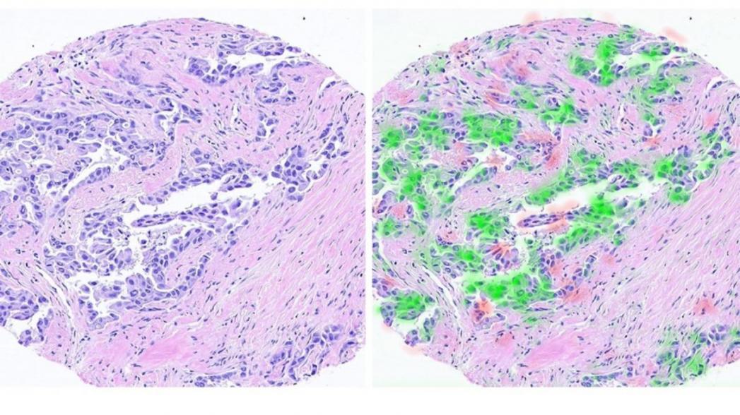 AI-система выявляет онкологические сигнатуры для улучшения персонализированной медицины