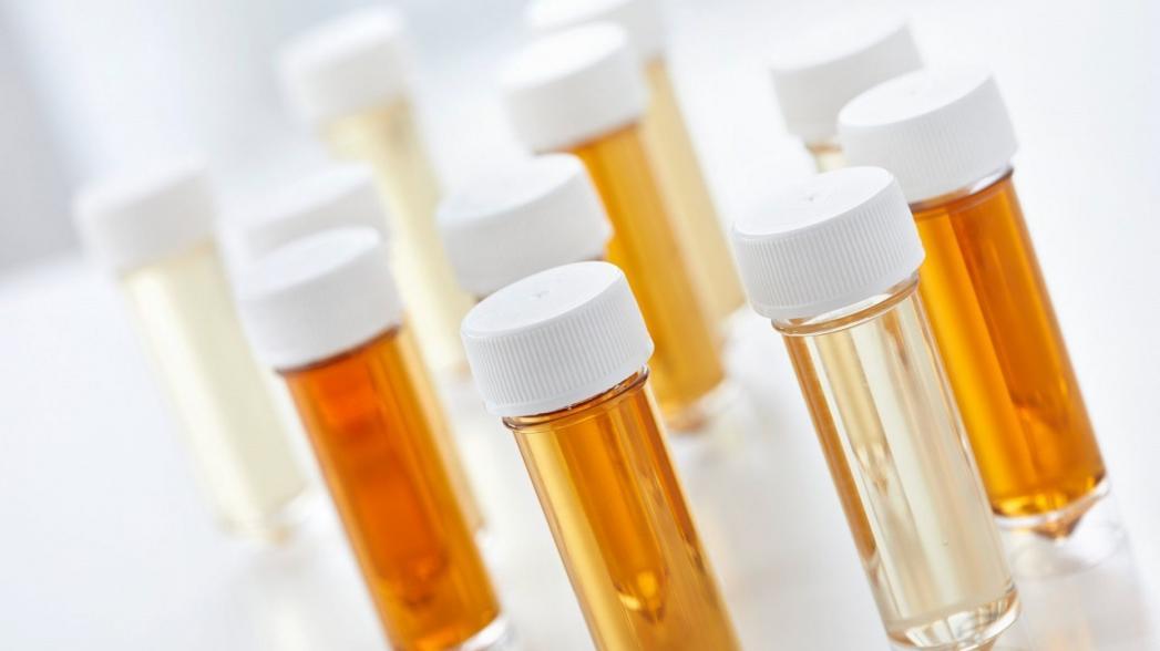 Сенсор для анализа мочи на биомаркеры рака