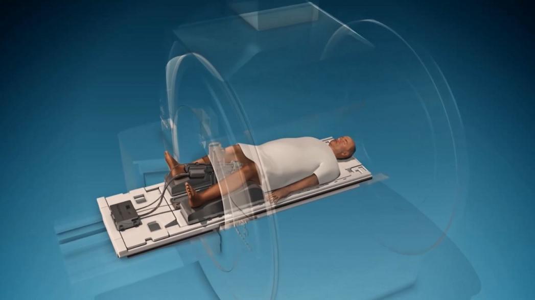 Трансуретральная ультразвуковая абляция как безопасный метод лечения рака простаты