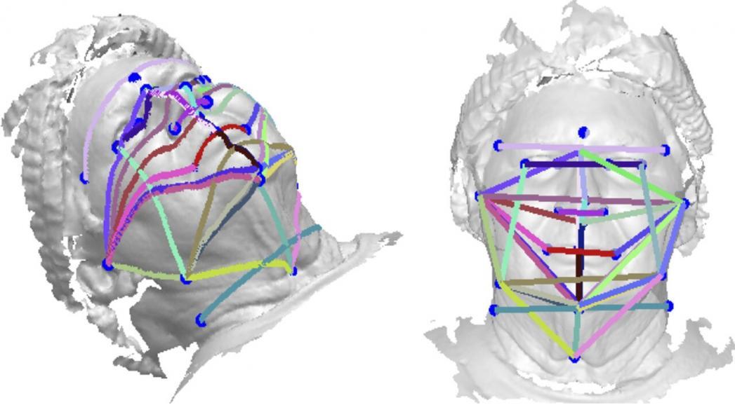 Определение апноэ сна по 3D-скану лица