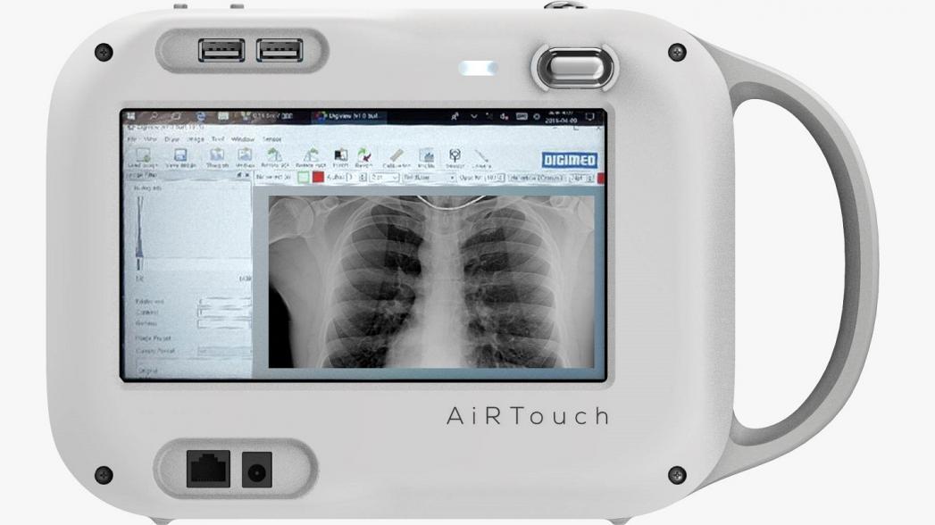 Портативный рентгеновский аппарат, который можно использовать для диагностики COVID-19