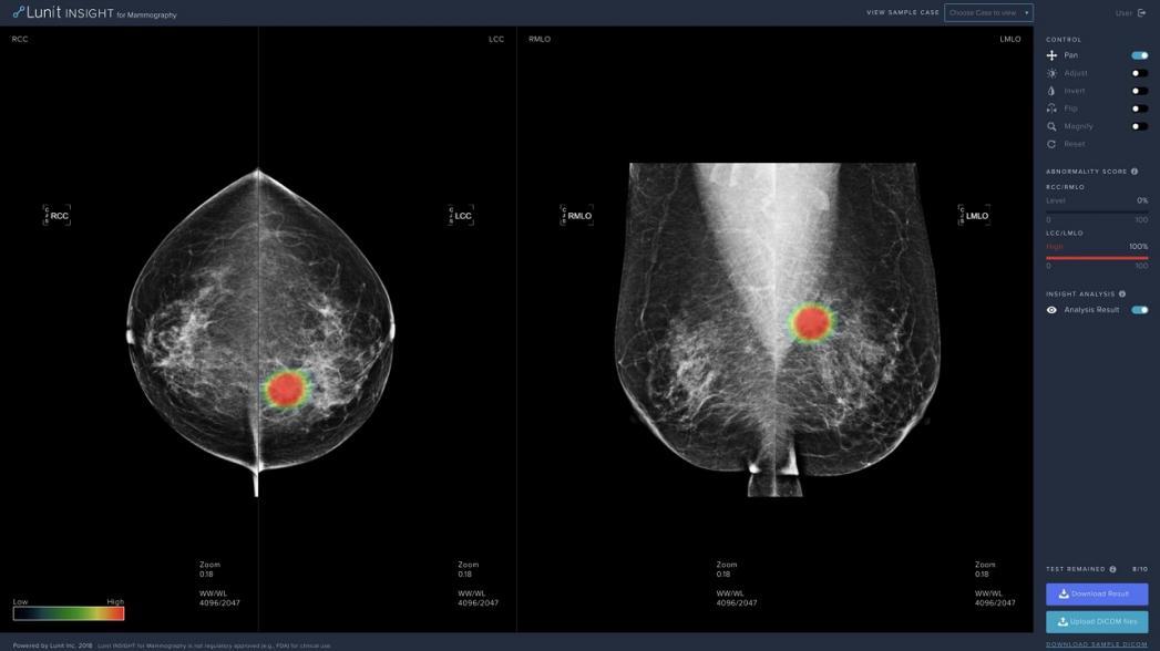 Система диагностики рака груди Lunit разрешена к использованию в Европе