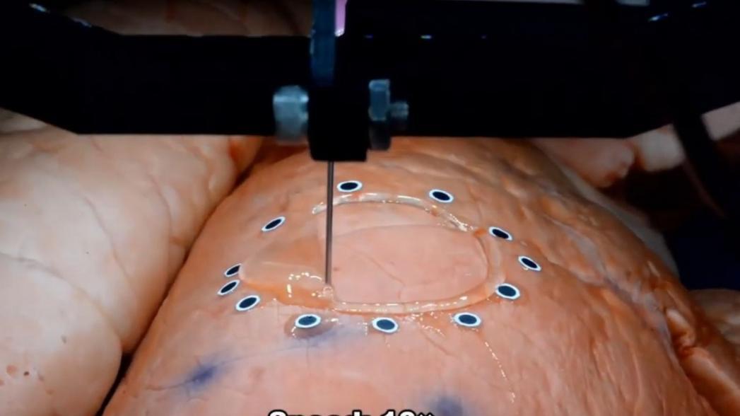 Напечатать сенсор прямо на органе внутри тела