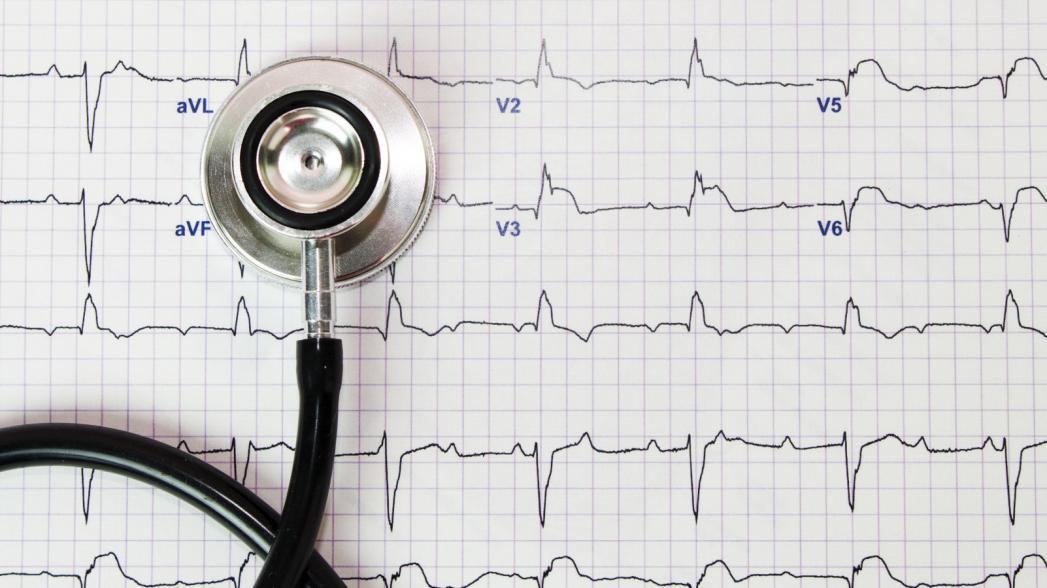Российские исследователи изучили эффективность телемедицинских технологий в ЭКГ-диагностике