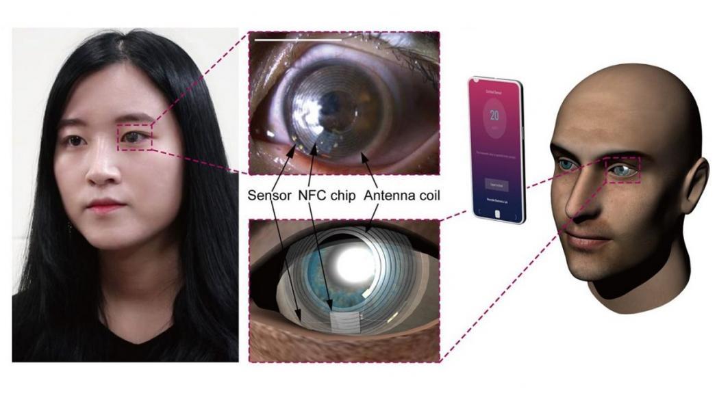 """""""Умные"""" контактные линзы как инструмент измерения уровня кортизола"""