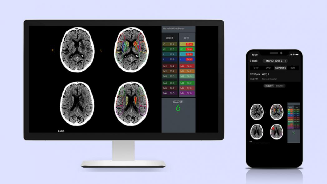 Rapid ASPECTS: система визуального анализа помогает диагностировать повреждения мозга