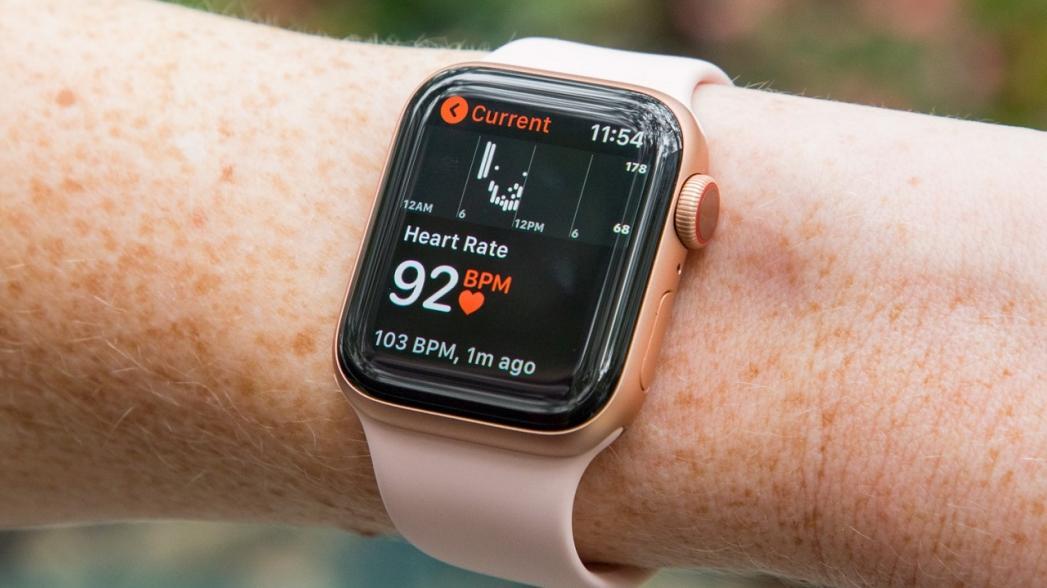 Использование функции контроля аномального пульса в часах Apple Watch увеличивает количество ненужных посещений врачей