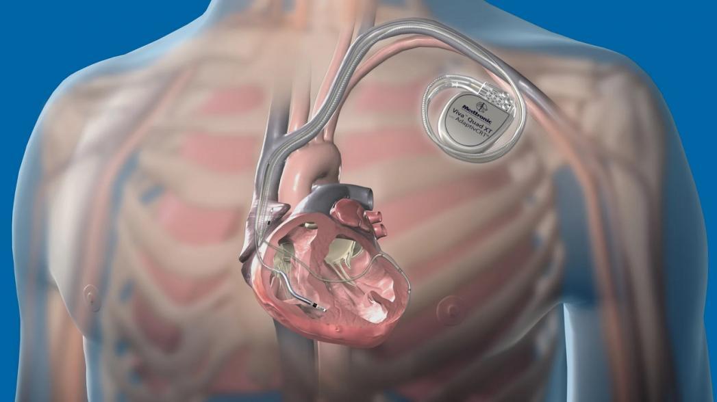 Взгляд изнутри. Медицинские имплантаты. Часть 1.