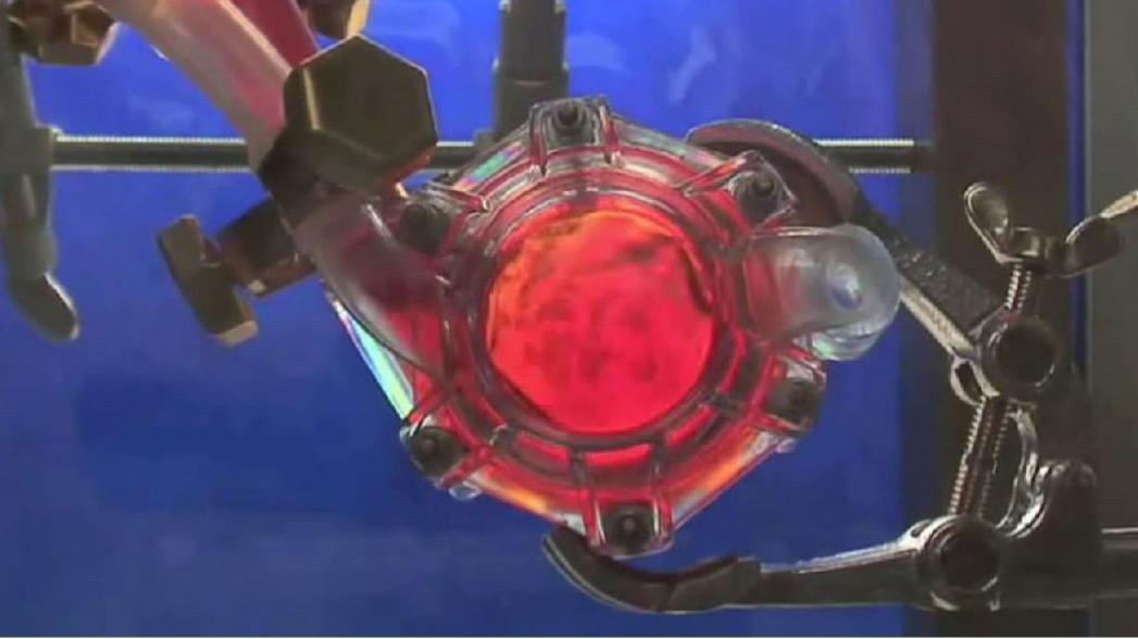 """Имплантируемая """"искусственная почка"""" готовится к испытаниям в США"""