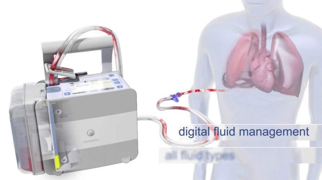 Система дренажа грудной клетки для минимизации инфекции COVID-19