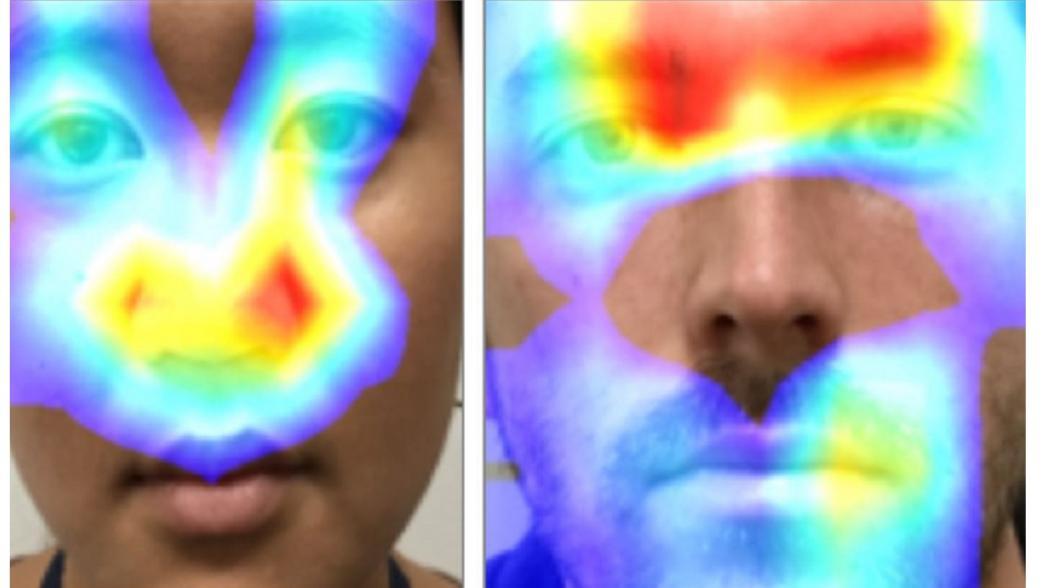 Может ли система распознавания лиц помочь выявить врожденную гиперплазию надпочечников?