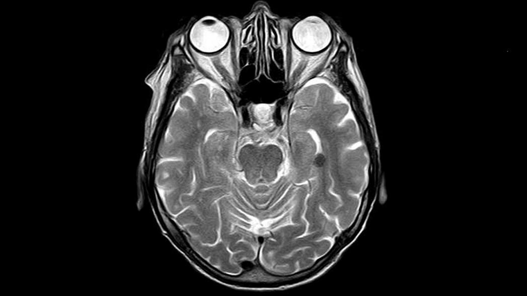 Разрабатывается недорогой портативный МРТ-сканер для исследований мозга