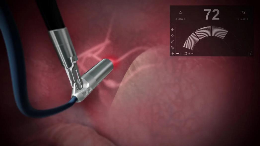 Роботизированный гамма-зонд Sensei для обнаружения рака начинает использоваться в Европе