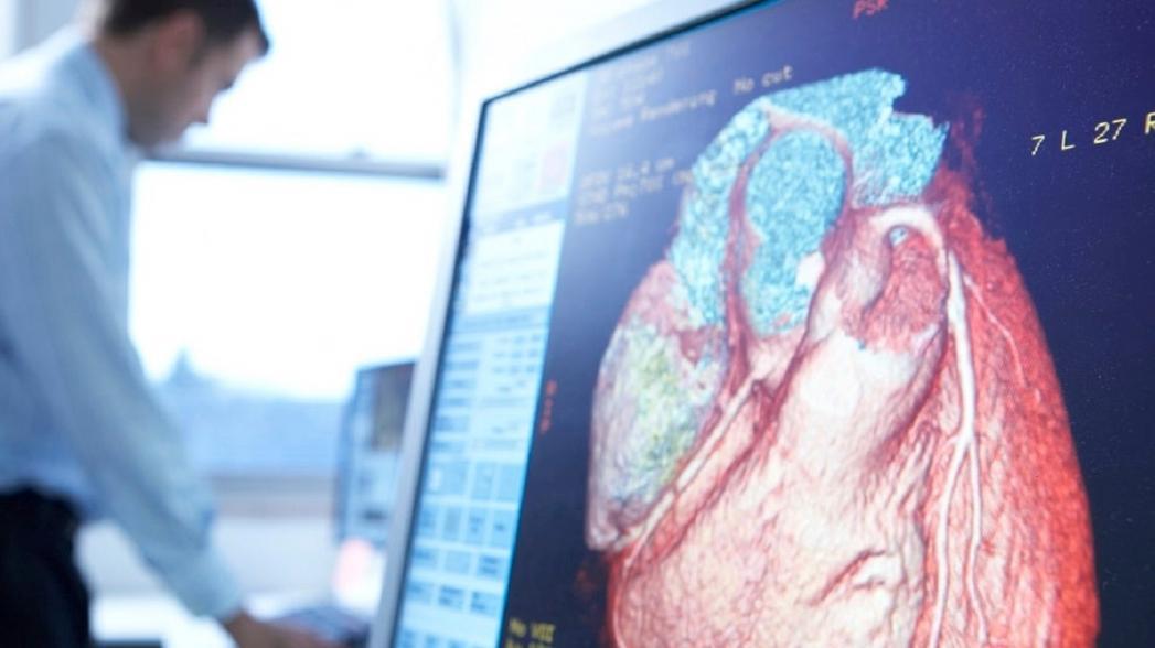 """AI-технология, способная выявить артерии с """"тикающей бомбой"""""""