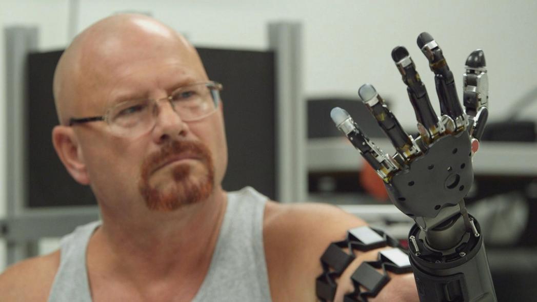 Сенсор на предплечье для контроля протеза руки